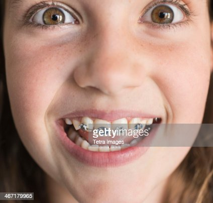 USA, New York, New York City, Girl (8-9) showing braces