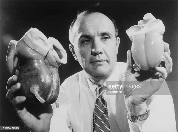 The dramatic difference in the sizes of an earlier artificial heart and the new streamlined organ is shown by Robert M Pierson manager of synthetic...