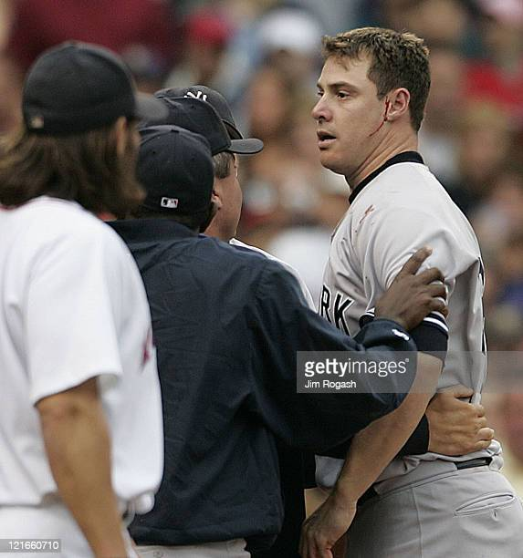 New York Yankees pitcher Tanyon Sturtze right is held back by teammates after he cut his face in a brawl in the third inning after Yankees batter...