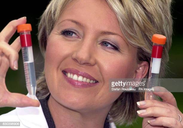 ITN newsreader Kirsty Young with a sample of her own DNA at the Cancer Research Campaign headquarters in London as part of a scientific experiment to...