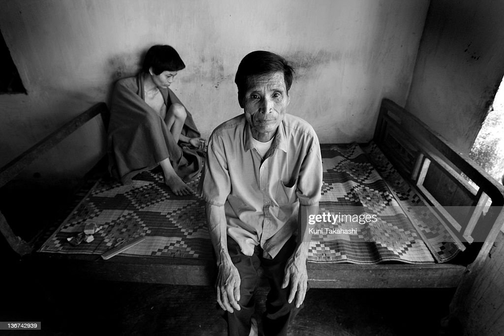 Nguyen Thi Quyen, 34, who suffers severe mental disabilities, sits at her home on June 22, 2009 in Thai Binh Province in northern Viet Nam. Quyen's father Nguyen Van Huu, 68, joined the army in 1965 and served for five years in the Central Highlands, along the border with Cambodia, where he was exposed to Agent Orange. Memories of the Viet Nam War are dimming, but Viet Namese who were exposed to Agent Orange and other dioxin-laced chemicals during the fighting are still experiencing devastating health effects, and birth defects have brought the impact into a second generation. Yet the U.S. government has yet to make full amends, either in the U.S. or overseas.