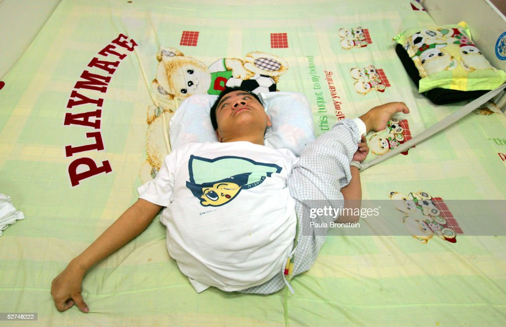 Nguyen Viet, 23 years old, lays on his bed at the Tu Du Hospital May 2, 2005 in Ho Chi Minh City, Vietnam. He has been deformed since birth from what may be the effects of the defoliant Agent Orange used in the Vietnam War. On March 10 a U.S. Federal Court in Brooklyn, New York dismissed a law suit on behalf of millions of Vietnamese against the U.S. for its use of the toxic defoliant during the Vietnam War, which contains dioxin. In 1984, seven American chemical companies paid $180 million to settle a suit by U.S veterans affected by Agent Orange. Vietnam pledges to pursue the lawsuit and is taking the case to a US Court of Appeals in June.