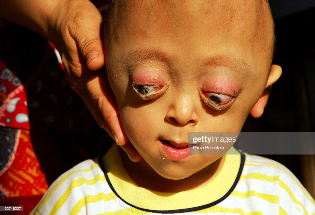 Nguyen Xuan Minh (L), 4 years, is tended to at the Tu Du Hospital May 2, 2005 in Ho Chi Minh City, Vietnam. He has been deformed since birth from what may be the effects of the defoliant Agent Orange used in the Vietnam War. On March 10 a U.S. Federal Court in Brooklyn, New York dismissed a law suit on behalf of millions of Vietnamese against the U.S. for its use of the toxic defoliant during the Vietnam War, which contains dioxin. In 1984, seven American chemical companies paid $180 million to settle a suit by U.S veterans affected by Agent Orange. Vietnam pledges to pursue the lawsuit and is taking the case to a US Court of Appeals in June.