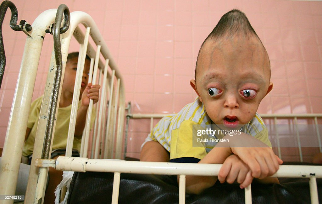 Nguyen Xuan Minh, 4 years, lays in a crib at the Tu Du Hospital May 2, 2005 in Ho Chi Minh City, Vietnam. He has been deformed since birth from what may be the effects of the defoliant Agent Orange used in the Vietnam War. On March 10 a U.S. Federal Court in Brooklyn, New York dismissed a law suit on behalf of millions of Vietnamese against the U.S. for its use of the toxic defoliant during the Vietnam War, which contains dioxin. In 1984, seven American chemical companies paid $180 million to settle a suit by U.S veterans affected by Agent Orange. Vietnam pledges to pursue the lawsuit and is taking the case to a US Court of Appeals in June.