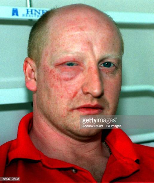 PC Nick Casey one of two officers injured in an acid attack today praised the 'silent majority of good citizens whose intervention had saved their...