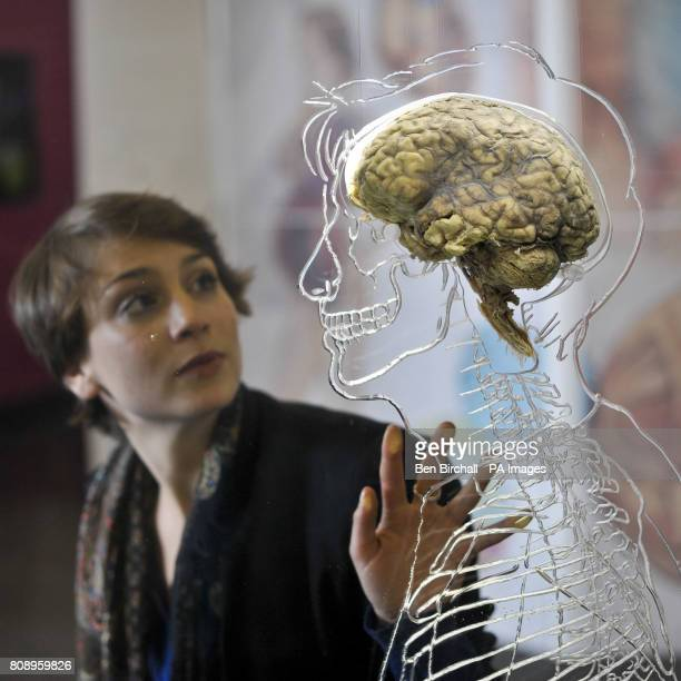 PHOTO Nicole Briggs from @Bristol science attraction inspects a real human brain suspended in liquid with a toscale skeleton central nervous system...