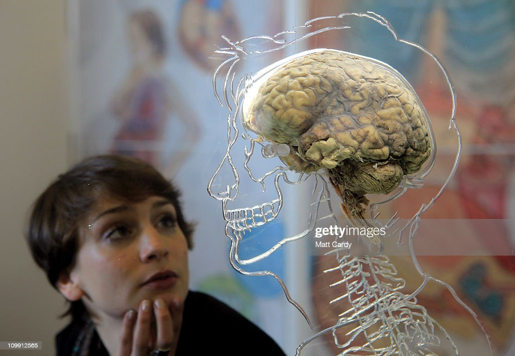 Nicole Briggs looks at a real human brain being displayed as part of new exhibition at the @Bristol attraction on March 8, 2011 in Bristol, England. The Real Brain exhibit - which comes with full consent from a anonymous donor and needed full consent from the Human Tissue Authority - is suspended in a large tank engraved with a full scale skeleton on one side and a diagram of the central nervous system on the other and is a key feature of the All About Us exhibition opening this week.