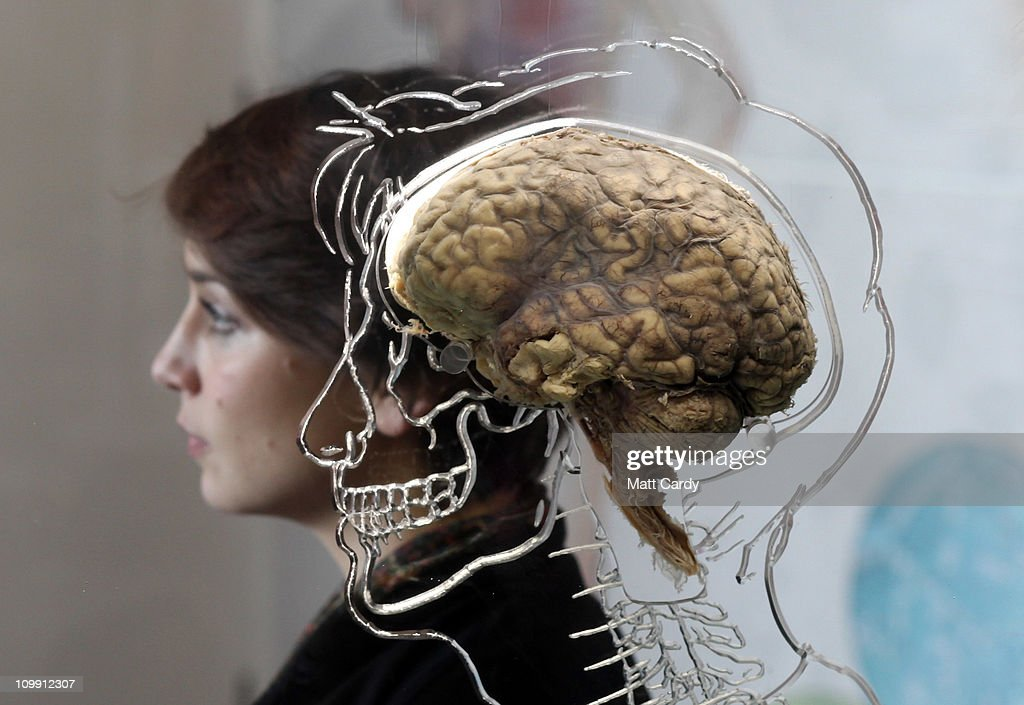 Nicole Briggs sits besides a real human brain being displayed as part of new exhibition at the @Bristol attraction on March 8, 2011 in Bristol, England. The Real Brain exhibit - which comes with full consent from a anonymous donor and needed full consent from the Human Tissue Authority - is suspended in liquid with a engraved full scale skeleton on one side and a diagram of the central nervous system on the other and is a key feature of the All About Us exhibition opening this week.