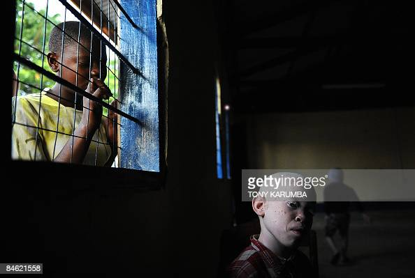 Nineyearold Amani sits on January 25 2009 in a recreational hall at the Mitindo Primary School for the blind where he enrolled following the murder...
