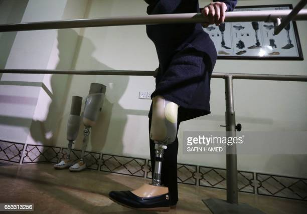 Nofa Mohammed a 45yearold displaced Iraqi woman from Mosul who lost her leg in a November 2016 mortar attack by Islamic State group fighters tries a...