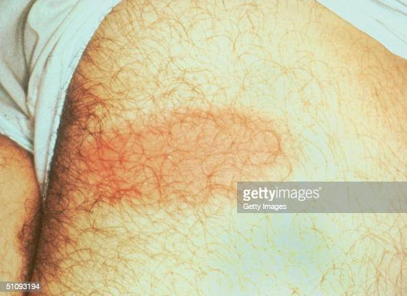 NonBull'sEye Rash In Shown June 15 2001 On The Side Of A Torso Of A Patient Ticks Cause An Acute Inflammatory Disease Characterized By Skin Changes...
