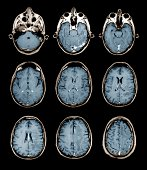 Normal brain, MRI scans