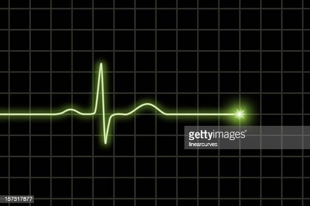 Normal ECG wave