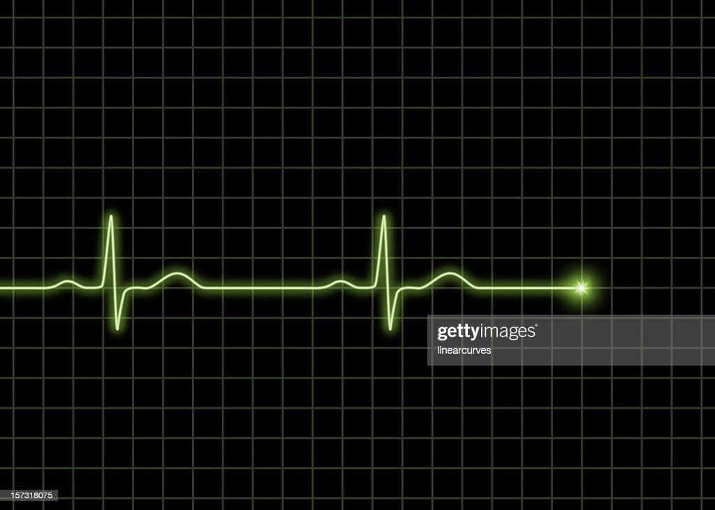 Normal ECG waves