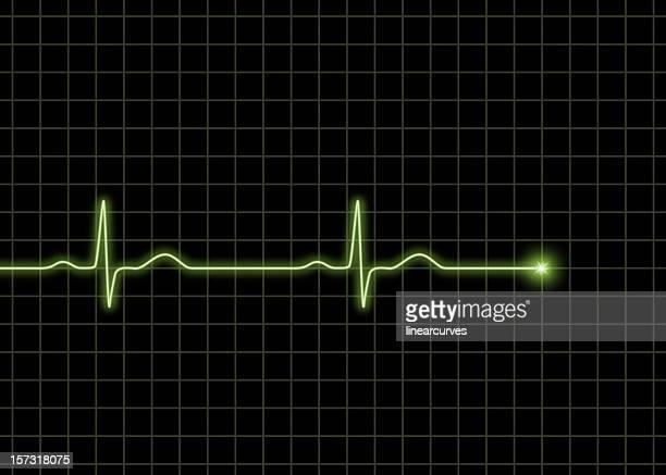 Normale ECG Wellen