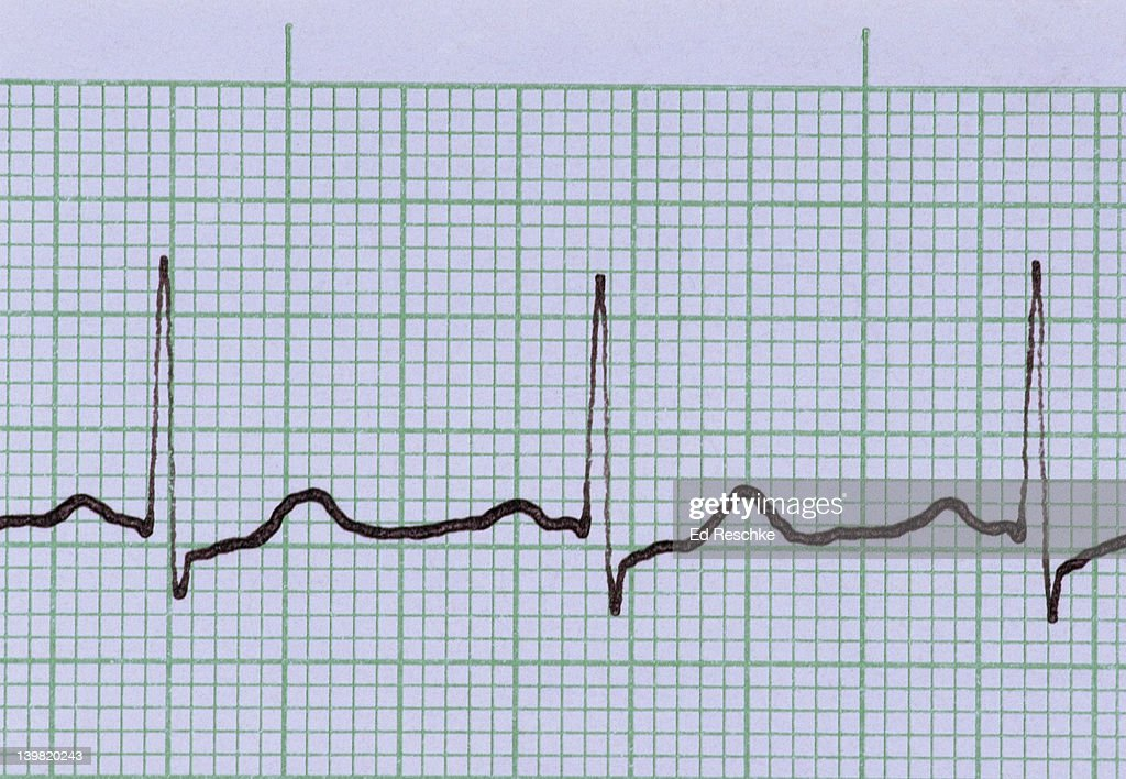 Normal electrocardiogram (ecg). Normal sinus rhythm. Shows: P wave (depolarization of the atria), QRS complex (depolarization of the ventricles), and the T wave (repolarization of the ventricles). Three cardiac cycles are shown. The smallest squares : Stock Photo