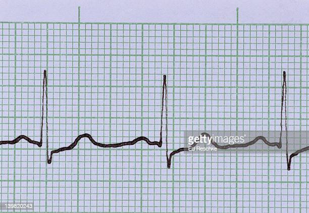 Normal electrocardiogram (ecg). Normal sinus rhythm. Shows: P wave (depolarization of the atria), QRS complex (depolarization of the ventricles), and the T wave (repolarization of the ventricles). Three cardiac cycles are shown. The smallest squares