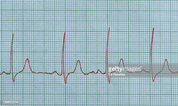 Normal electrocardiogram (ecg). Normal sinus rhythm. Shows: P wave (depolarization of the atria), QRS complex (depolarization of the ventricles), and T wave (repolarization of the ventricles). Shows four cardiac cycles. The smallest squares are .04