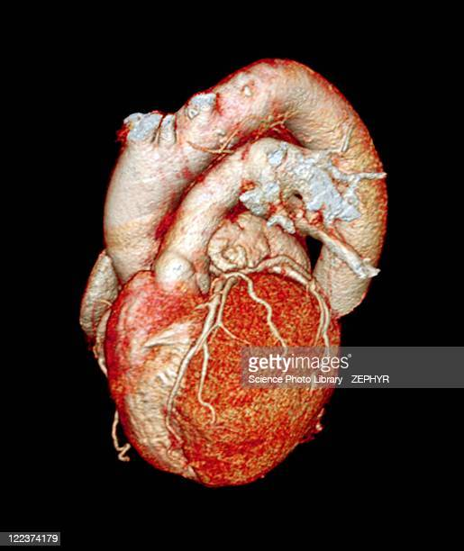 Normal heart, 3D CT scan
