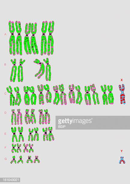 Normal Karyotype 46Xy Male Human Chromosomes Are Classified By Groups According To The Denver Classification In Which They Are Arranged By Decreasing...
