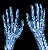 Normal male Hand x-ray both side process in blue tone