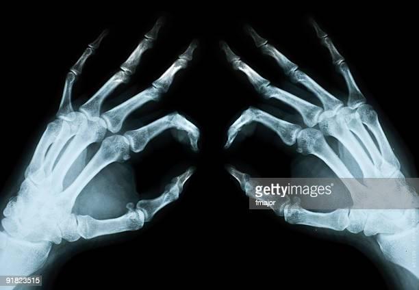 Normal Radiograph Of Human Hand