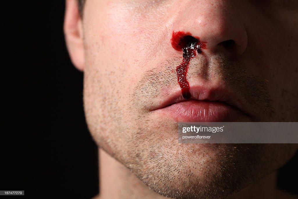 Nose Bleed : Stock Photo