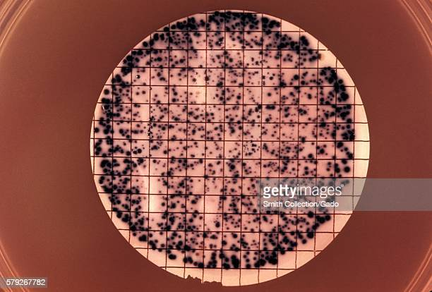 Note the presence of bacterial colonies grown from a urine specimen taken for a differential diagnostic test for gonorrhea 1972 A urine specimen is...