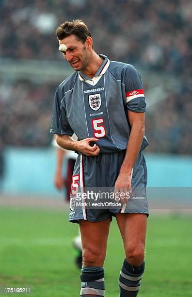 09 November 1996 International football Georgia v England England captain Tony Adams smiles despite having a large dressing attached to a head wound
