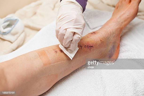 Infirmière au travail avec patient après une Jambe cassée ouverture