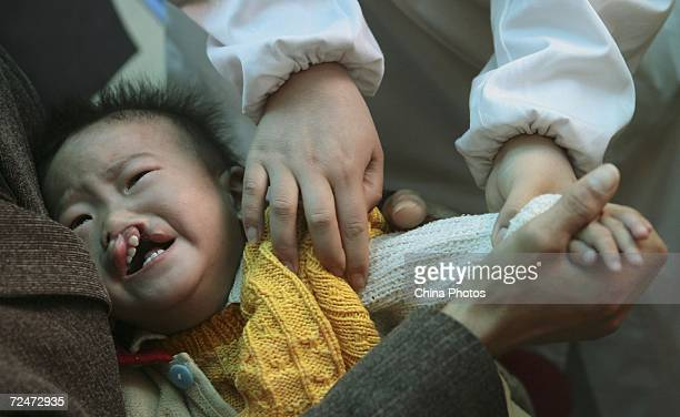 A nurse calms a Chinese child suffering from cleft lip and palate before an examination during a campaign held by the Operation Smile International...
