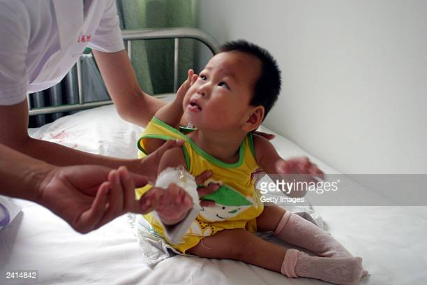 A nurse holds QingQing a 14monthold baby girl in the Dongzhimen hospital on August 21 2003 in Beijing China The baby girl was born with an extra leg...