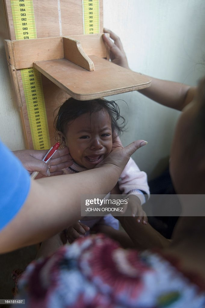 A nurse measures a baby in a community home during visit of Tony Lake Executive Director of the United Nations Children's Fund during a visit to the...