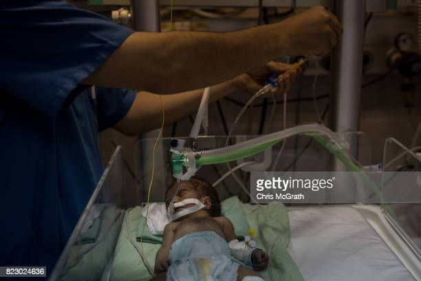 A nurse tends to a newborn baby suffering complications in the neonatal unit at Shifa hospital on July 19 2017 in Gaza City Gaza In the past month...