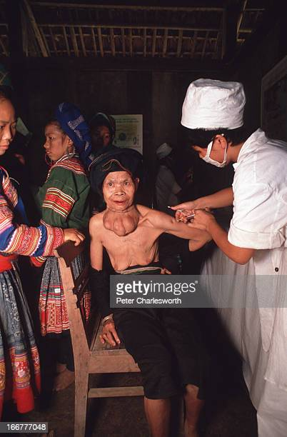 A nurse treats an old 'Dao' hill tribe woman for goiter in a village clinic in northern Vietnam