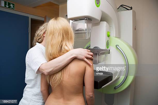 Enfermeira com mulheres jovens a ter uma mamografias