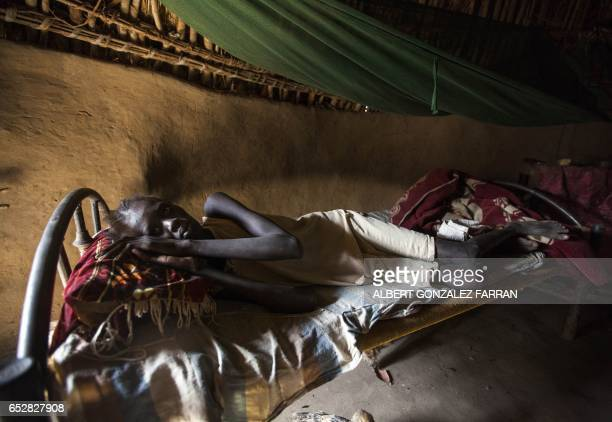 Nyadual Goknyang weakened by a prolonged lack of food lies on a bed inside a shelter in Ngop in South Sudan's Unity State on March 10 2017 The...