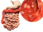 Ulcerative colitis is adisease of the colon that includes characteristic ulcers.
