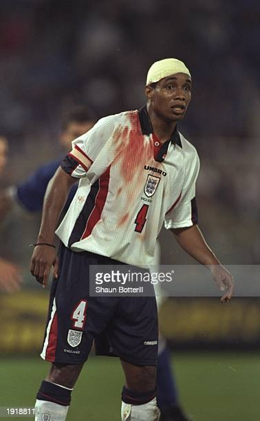 Paul Ince of England sports a bandage and blood stained shirt during the World Cup Qualifier against Italy at the Olympic Stadium in Rome Italy The...