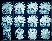 Cerebral vessels, a brain,MRI