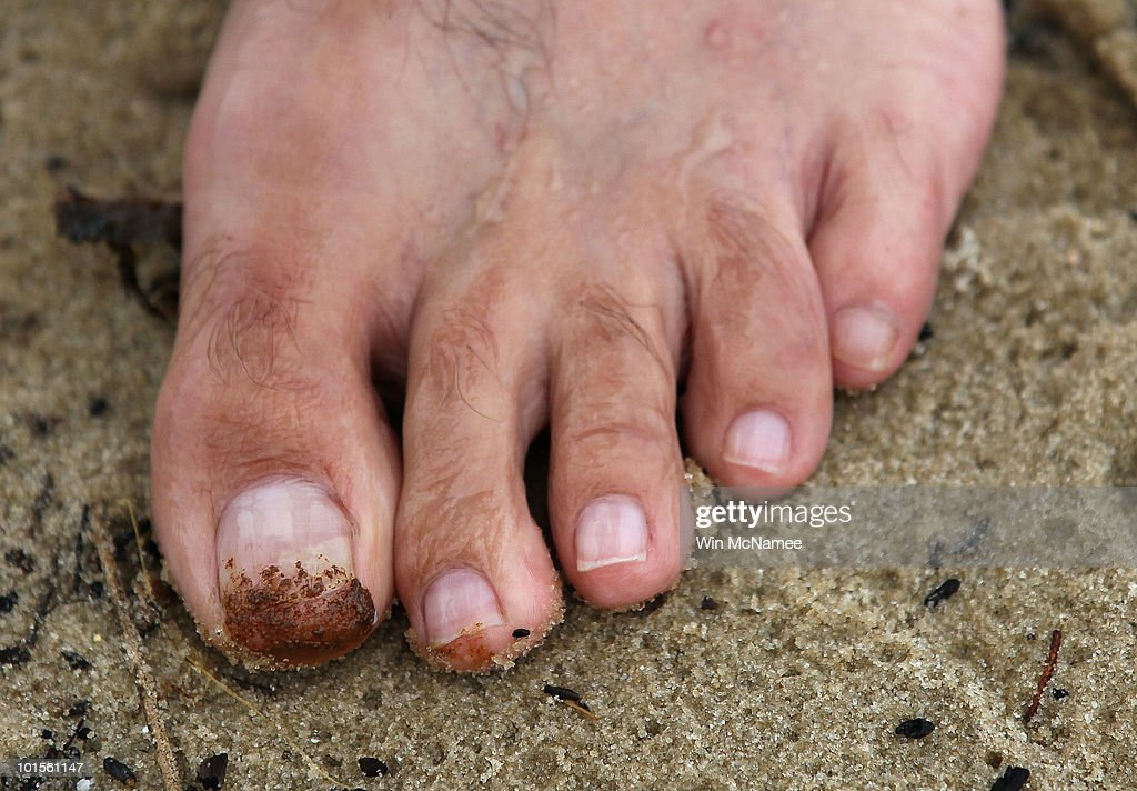 Oil stains the big toe of William Barnett while he collects orange colored tar balls on a public beach on June 2, 2010 in Dauphin Island, Alabama. Oil related to the Deepwater Horizon accident began to appear yesterday on the shores of Alabama.