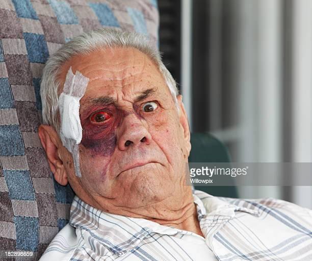 Old Man With Black Eye and Bandage Mugging for Camera