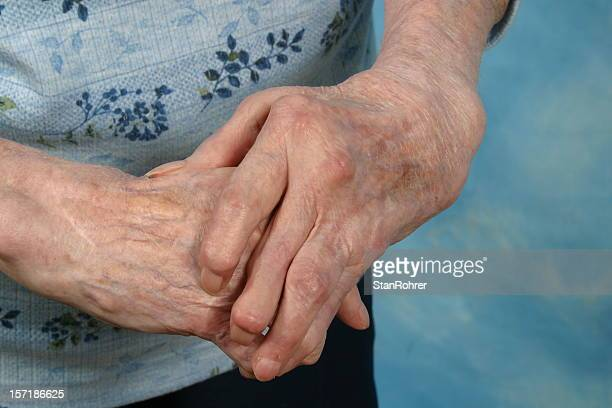 Old person with skin spots on arthritic hands
