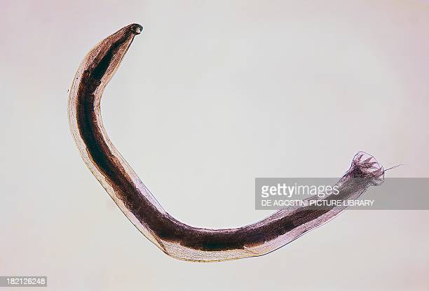 Ancylostoma Medical Definition | Merriam-Webster Medical ...