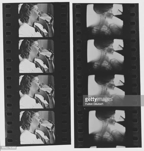 On the left a woman drinks from a glass and on the right the swallowing action is illustrated with an xray of the process