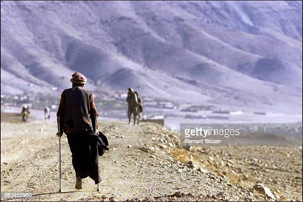 On the road leading to Jabel Al Sardj a villager who lost a leg following amputation when stepping on a Russian mine runs the risk of a similar...