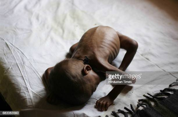 One and a half year old malnutrition child at Jawhar Hospital Thane District