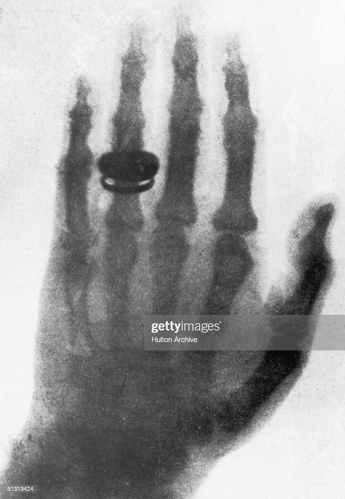 First X Ray Image