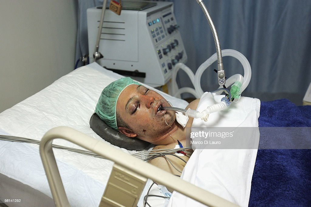 One of the victims of wednesday's suicide attacks recovers in her hospital bed on November 11 2005 at the Shmaisani Hospital in Amman JordanOn...