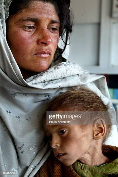 A oneandahalfyearold boy weighing only 4 kilos and suffering from chronic malnutrition lies in his mother's arms in the Action Contre Le Faim...